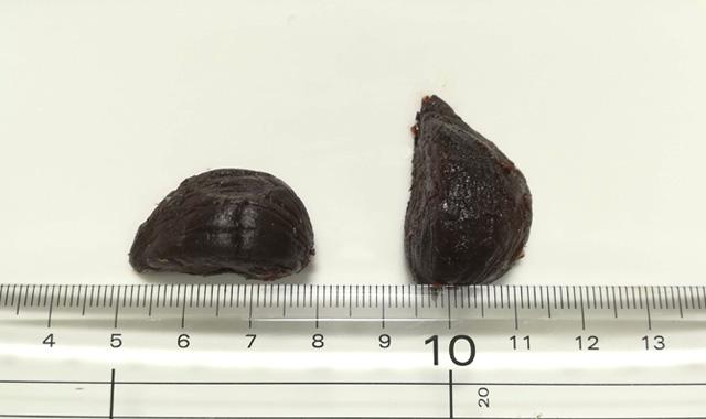 松尾農園の熟成黒にんにくの粒の大きさ